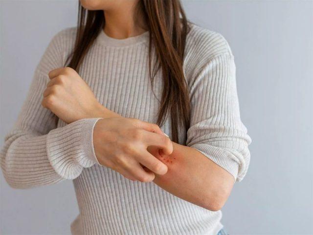 Bệnh mẩn ngứa trên da