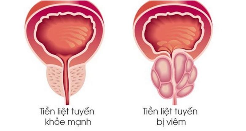 Viêm tiền liệt tuyến là căn bệnh xảy ra ở nam giới