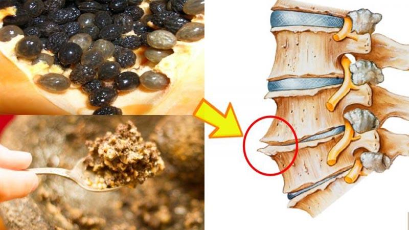 Cách chữa gai cột sống bằng hạt đu đủ hiệu quả bất ngờ