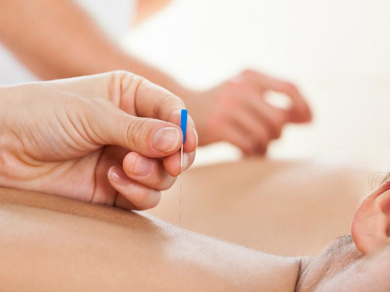 Phương pháp cấy chỉ chữa thoái hóa đốt sống cổ được các chuyên gia đánh giá rất cao