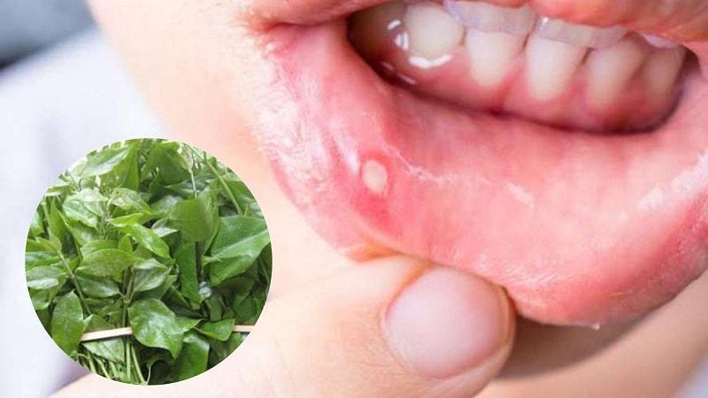 Dạ cẩm chữa bệnh về loét miệng