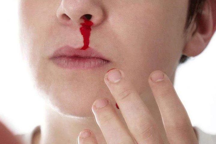 Chảy máu cam có thể cảnh báo nhiều bệnh lý nguy hiểm trong cơ thể