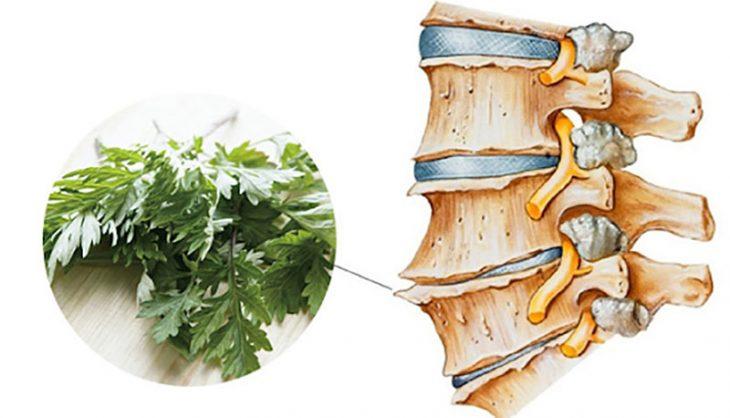 9 cách chữa bệnh gai cột sống lưng bằng ngải cứu