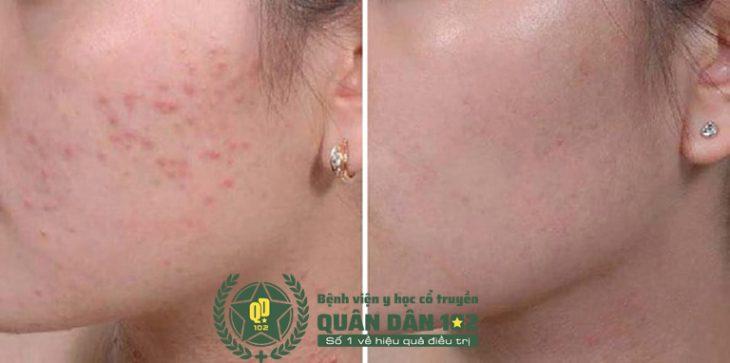 Sau giai đoạn 1, các triệu chứng ngoài da đã cải thiện đáng kể