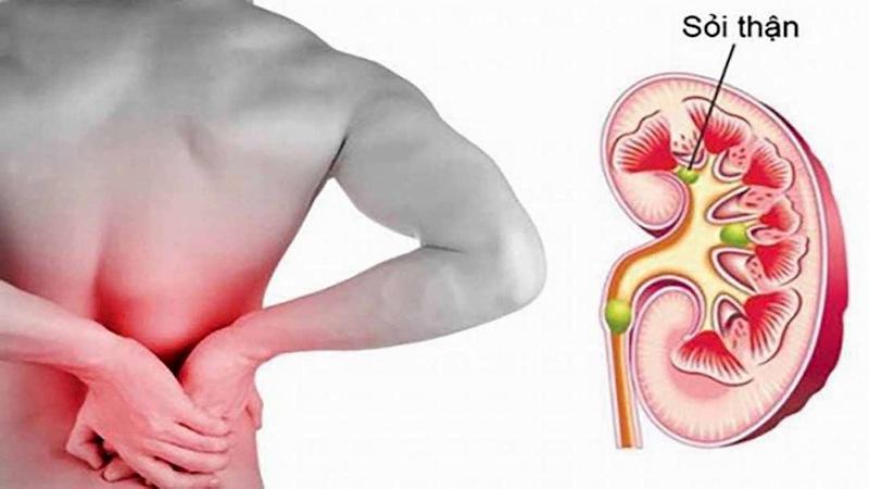 Sỏi thận là một trong những nguyên nhân gây đau bụng bên phải ngang rốn