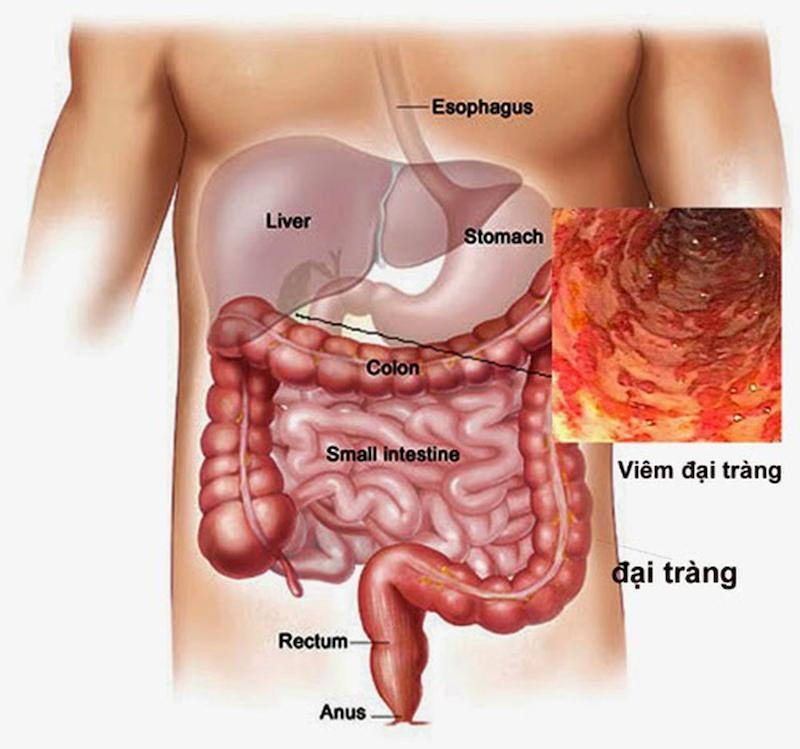 Đau bụng bên trái có thể là triệu chứng bệnh viêm đại tràng