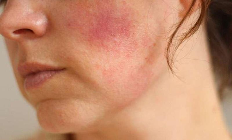 Dị ứng mỹ phẩm là tình trạng da bị tổn thương, xuất hiện mẩn đỏ, phát ban,...