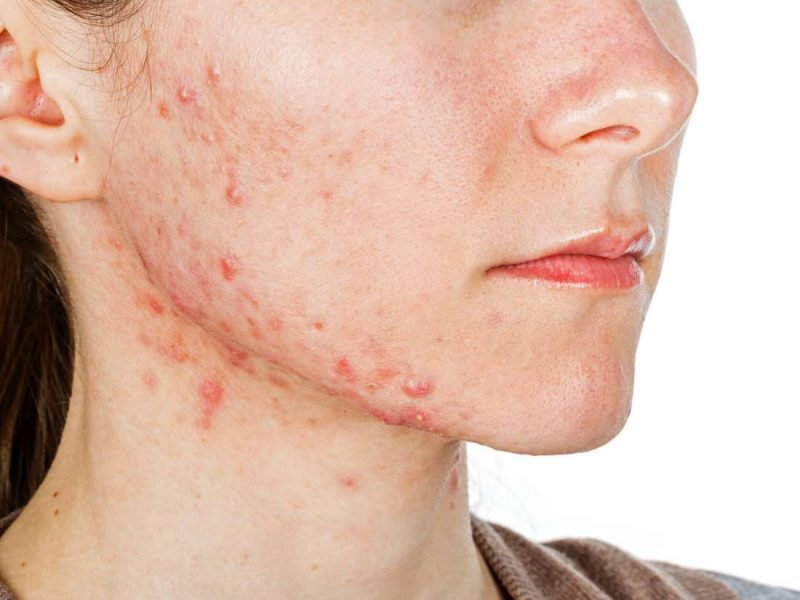 Dị ứng mỹ phẩm là tình trạng da mặt bị tổn thương tạo nên những nốt mẩn đỏ, nổi mụn, ngứa, nóng rát
