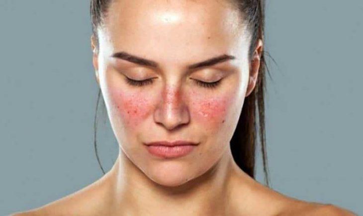Dị ứng thời tiết ở mặt là một bệnh lý da liễu, thường xảy ra khi giao mùa