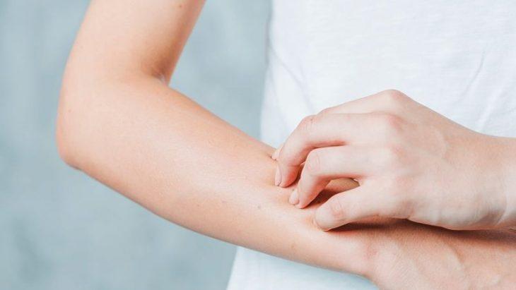 Dị ứng thời tiết gây ra tình trạng ngứa ngáu, châm chích khó chịu cho làn da