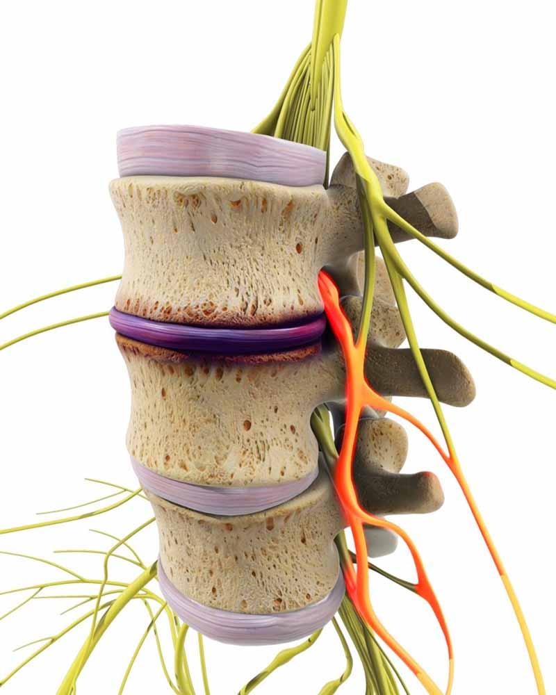 Gai cột sống chèn dây thần kinh có nguy hiểm không?