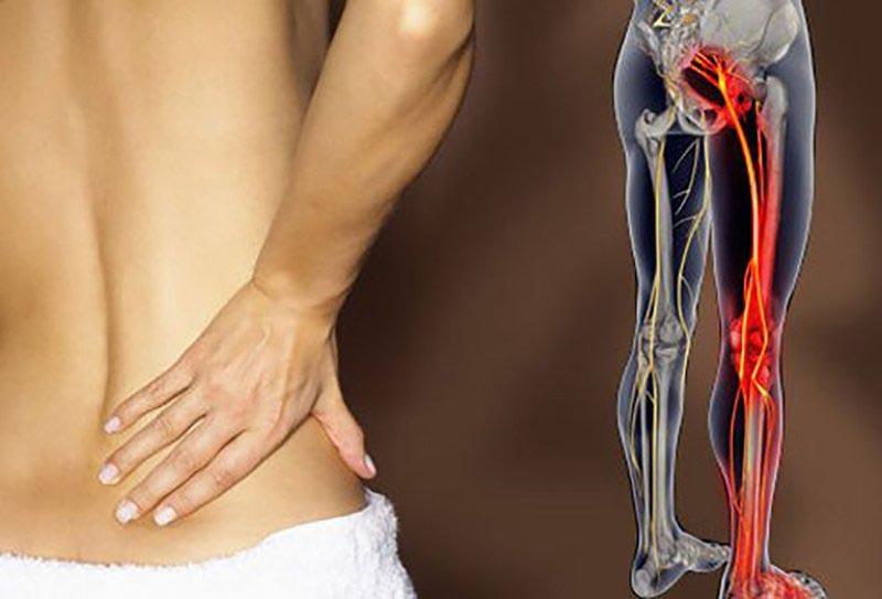 Dây thần kinh toạ bị chèn ép là biến chứng nặng của bệnh gai cột sống