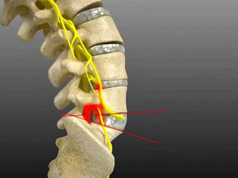 Người bệnh cảm thấy đau nhức, khó chịu tại vùng thắt lưng