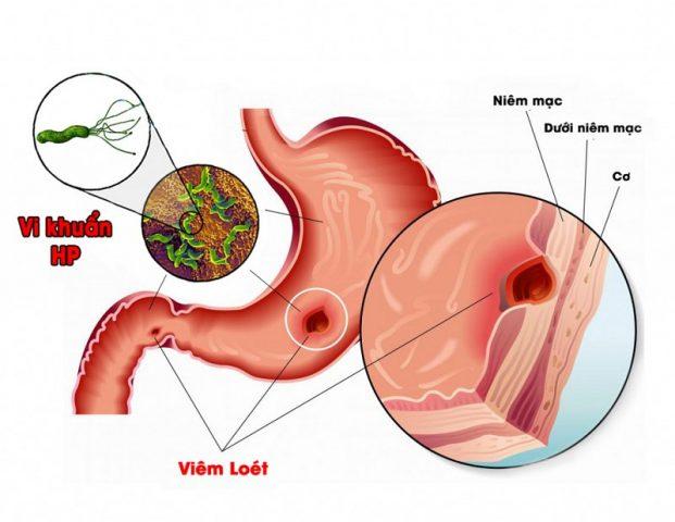 Các vùng viêm loét sẽ tiến triển nặng hơn và gây ra tình trạng vỡ tĩnh mạch, dẫn tới xuất huyết