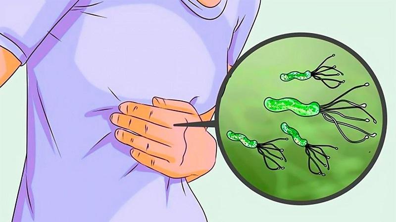 Vi khuẩn HP (Helicobacter pylori) loại một trong số loại vi khuẩn phổ biến nhất