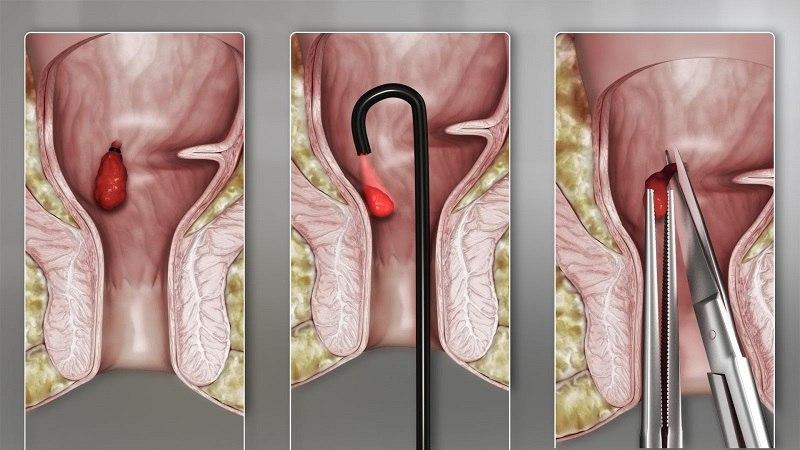 Việc áp dụng các biện pháp xâm lấn nhằm loại bỏ búi dom sẽ được chỉ định đối với bệnh nhân ở giai đoạn nặng.