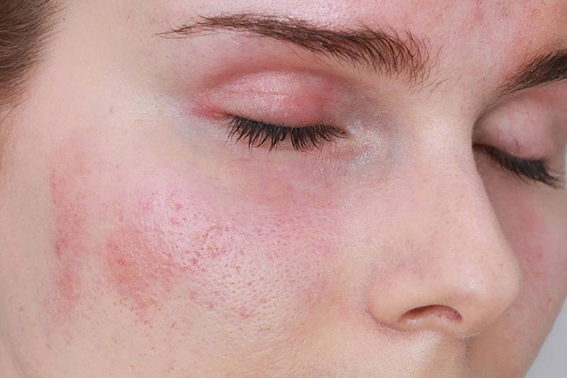 Mặt nổi mẩn đỏ không ngứa xảy ra do nhiều nguyên nhân khác nhau