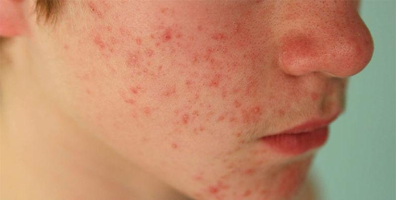 Da mặt nổi mẩn đỏ sẽ ảnh hưởng nhiều đến tâm lý và sức khỏe của người bệnh