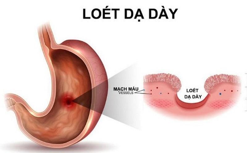 Biến chứng loét dạ dày tá tràng do nhiễm vi khuẩn Hp