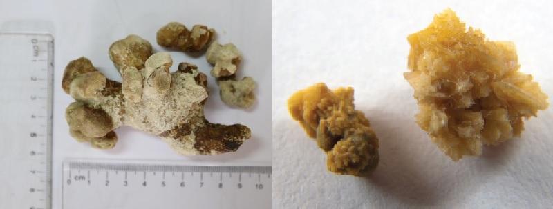 Một số hình dạng của loại sỏi thận san hô