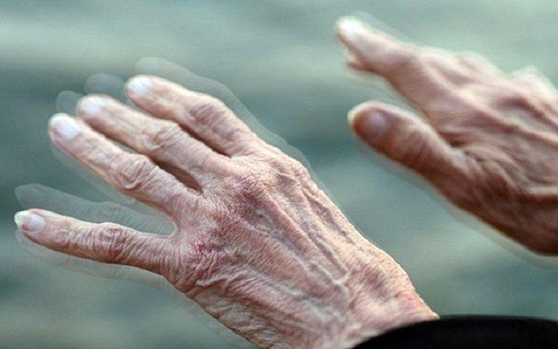 Bệnh lý Parkinson với biểu hiện suy giảm cân nặng