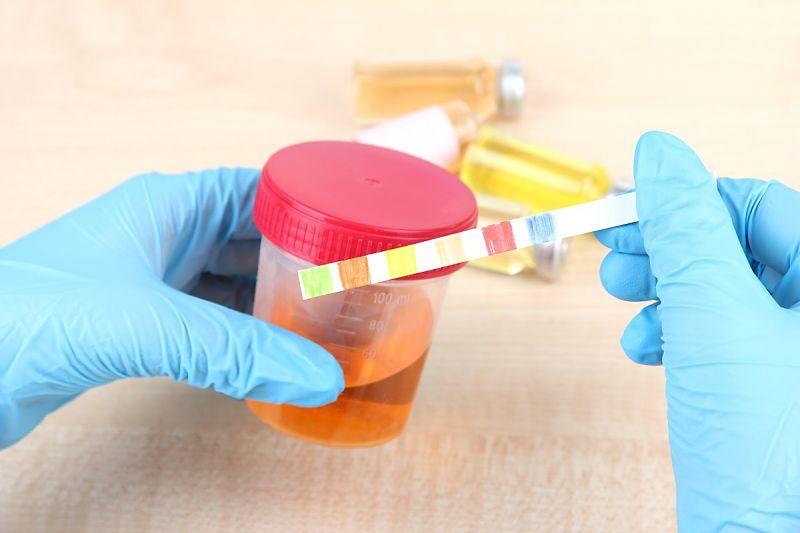 Tiểu rắt có máu cảnh báo nhiều bệnh lý đang tồn tại trong cơ thể bạn