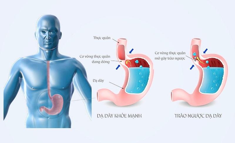 Trào ngược dạ dày đau họng là biến chứng phổ biến ở người mắc tổn thương do acid dịch vị dư thừa