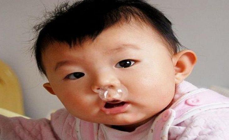 Trẻ bị ho sổ mũi