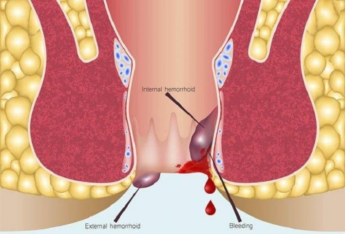Kích thước của búi trĩ sẽ tăng dần lên và không thể co lại vào bên trong, gây nhiều hệ lụy nguy hiểm.