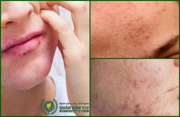 Tình trạng viêm xuất hiện tại nhiều vùng trên gương mặt của Mai