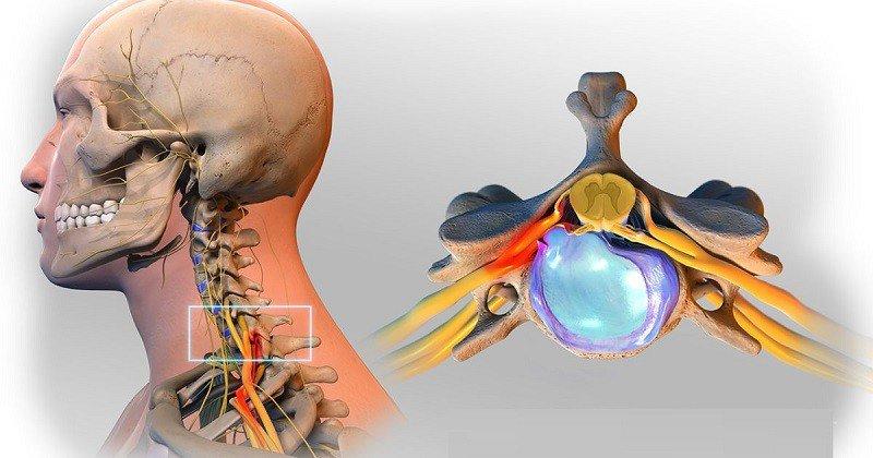 Chèn ép thần kinh, hẹp đốt sống hay thoát vị đĩa đệm đều là những biến chứng thường gặp của vôi hoá
