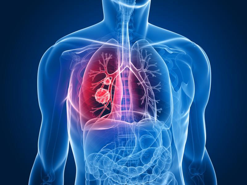 Xơ phổi là biến chứng nguy hiểm của bệnh ho lao