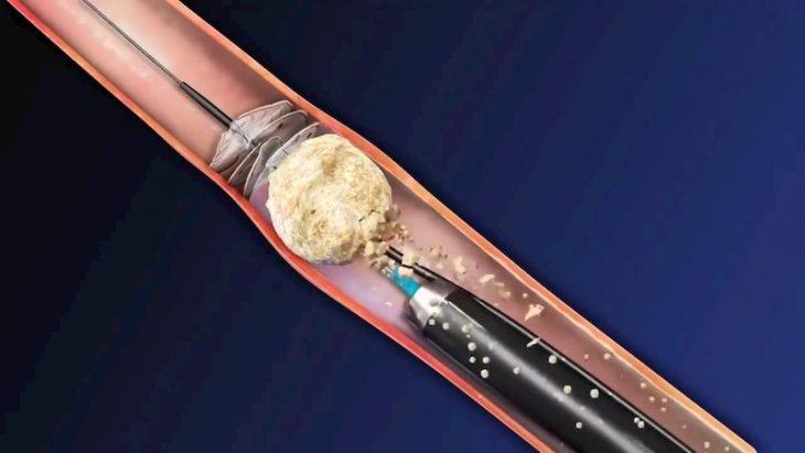 Bắn laser sỏi thận là phương pháp trị sỏi được áp dụng phổ biến hiện nay