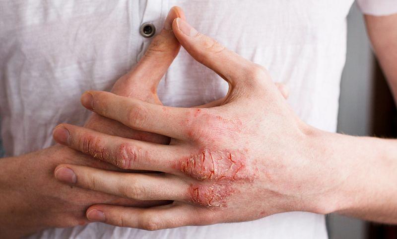 Triệu chứng của bệnh là gây ngứa rát, nổi mụn nước, đỏ da