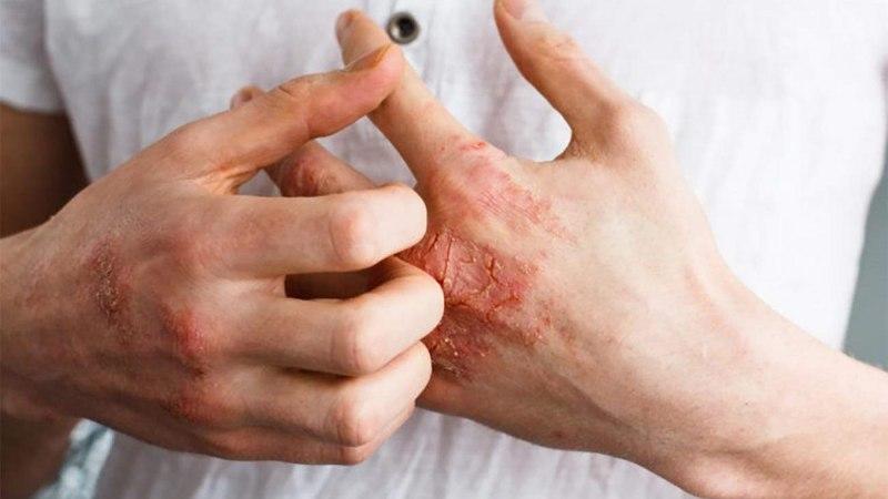 Cách trị chàm theo dân gian là phương pháp chữa bệnh hiệu quả được nhiều người lựa chọn