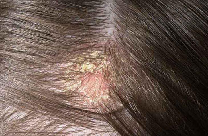 Top 11 cách trị nấm da đầu tại nhà hiệu quả