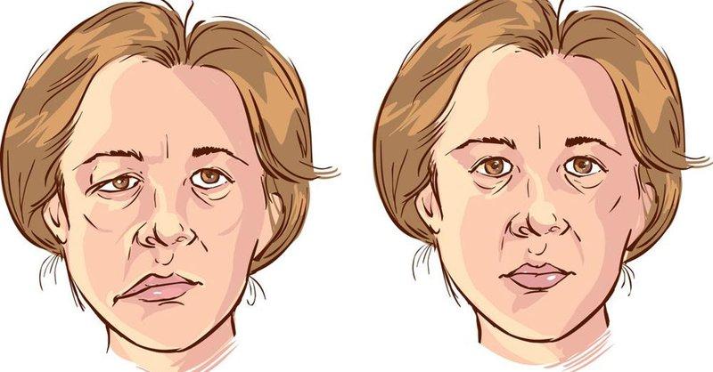 Đắng miệng cũng có thể do tổn thương các dây thần kinh