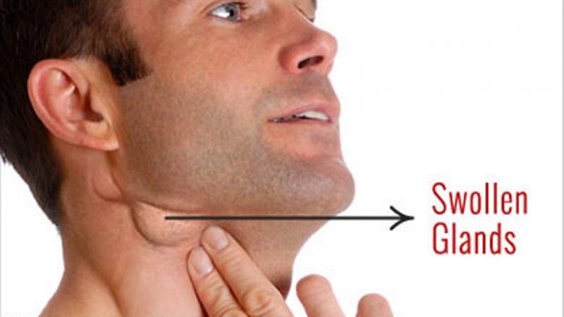 Hiện tượng phần cằm nổi hạch hầu như không đáng lo ngại và hoàn toàn có thể biến mất sau khi hệ thống miễn dịch đã ổn định