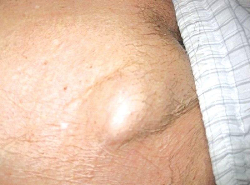 Hạch ở háng được gọi là các hạch bạch huyết, phân bố ở nhiều nơi trong cơ thể.