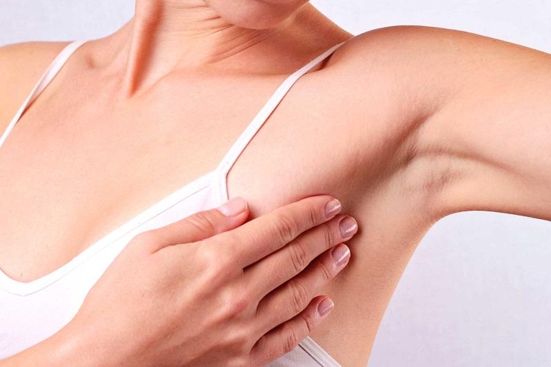 Nổi hạch ở nách có thể là dấu hiệu của bệnh ung thư vú.