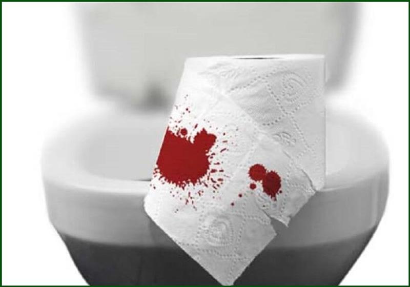 Khi đi đại tiện, người bệnh có thể thấy hậu môn chảy rỉ máu