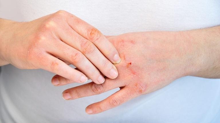 Tình trạng viêm da giảm dần sau liệu trình điều trị đầu tiên