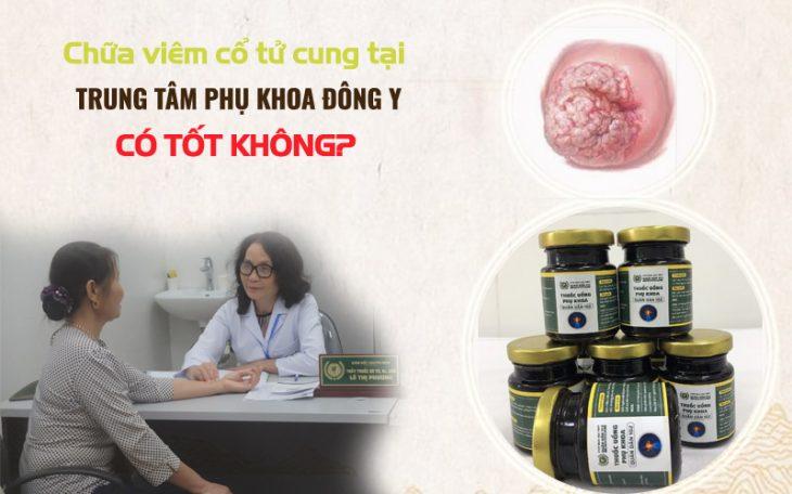 Chữa viêm cổ tử cung tại Trung tâm Phụ khoa Đông y Việt Nam