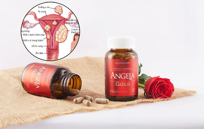 Bệnh nhân u xơ tử cung có thể uống được Angela gold