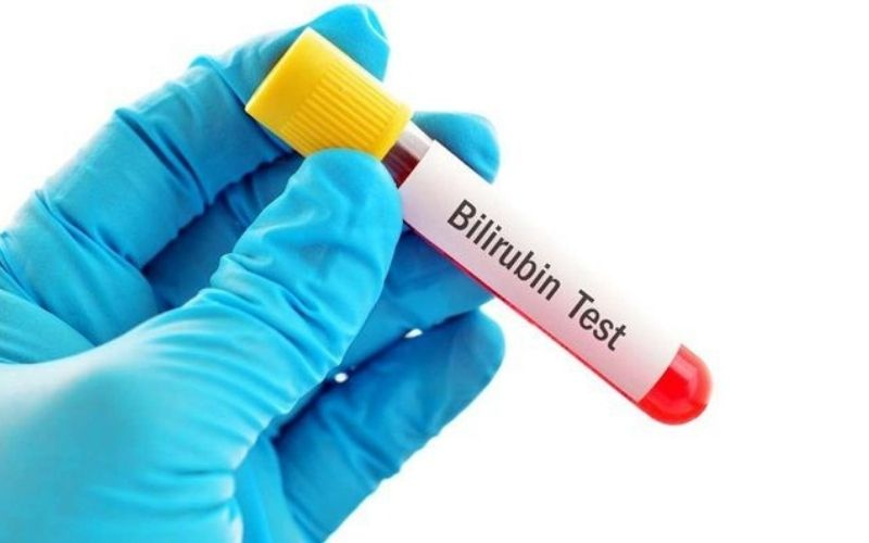 Xét nghiệm Bilirubin là cách chính xác nhất để chẩn đoán bệnh gây vàng da
