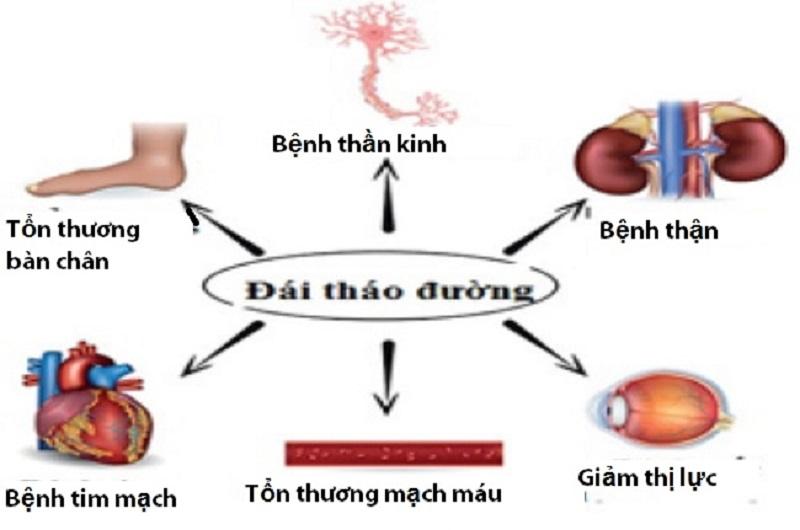 Bệnh đái tháo đường tuýp 3 đều có các triệu chứng giống như tiểu đường tuýp 1 và 2