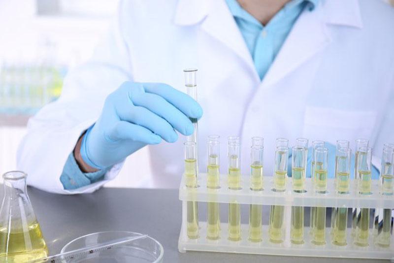 Xét nghiệm đường niệu giúp chẩn đoán chính xác bệnh tiểu đường