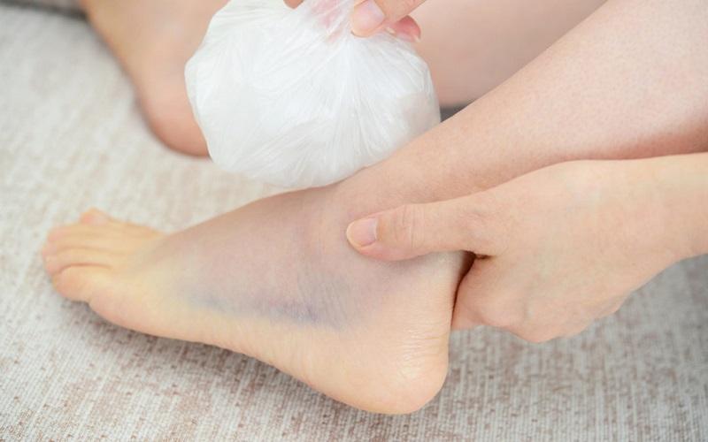 Chườm đá là một trong những cách trị bong gân vô cùng hữu hiệu