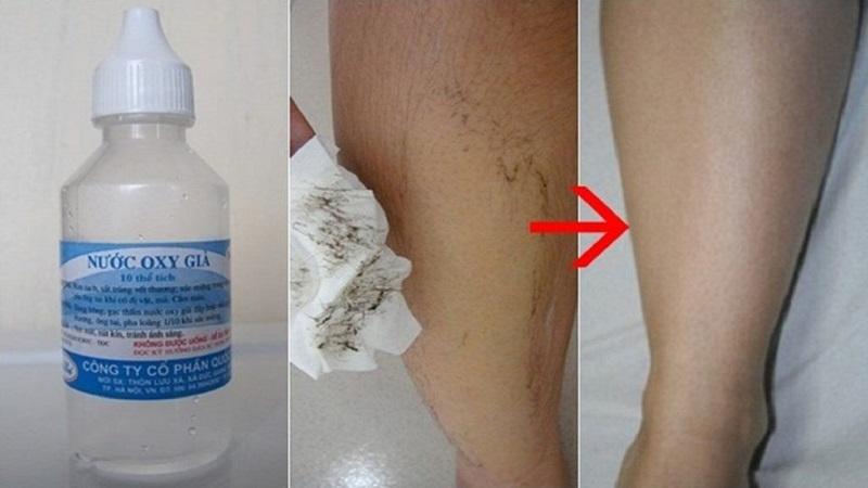 Sử dụng oxy già là cách tẩy lông chân vô cùng hữu hiệu