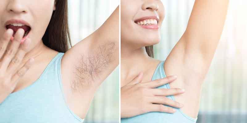 15 cách trị lông nách ngay tại nhà nhanh gọn, hiệu quả